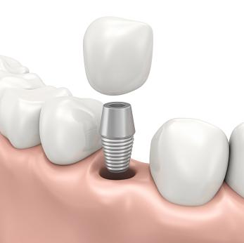 Dental Implants Alpharetta | Advantages of Dental Implants