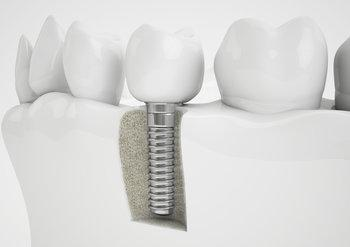 Dental Implant | Alpharetta GA 30022