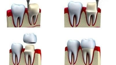 Dental Crowns | Alpharetta Creek Restorative Dentistry