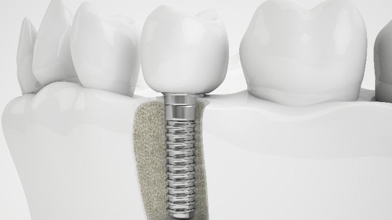 Dental implants | Alpharetta Creek Restorative Dentistry