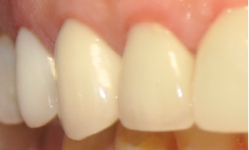 Metal-Free-Crowns-After-Image