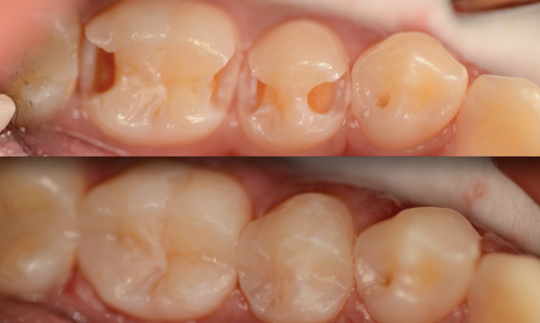 Fillings-After-Image