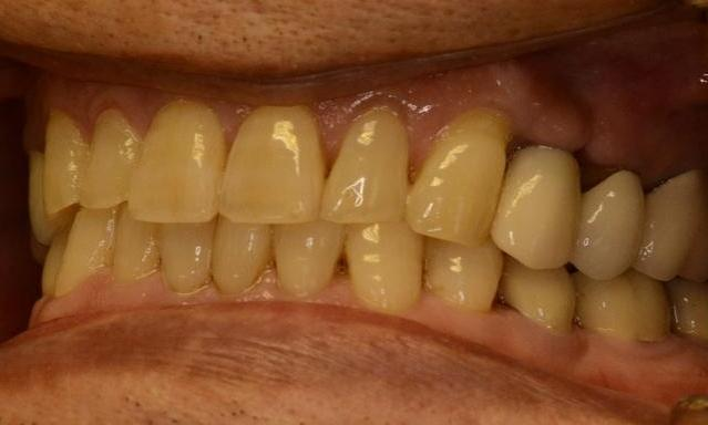 Implant-and-Crown-After-Image