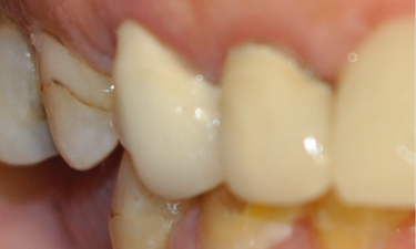 Metal-Free-Crowns-Before-Image