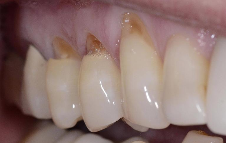 Smile Gallery Before And After Case Photos Dentist 30022