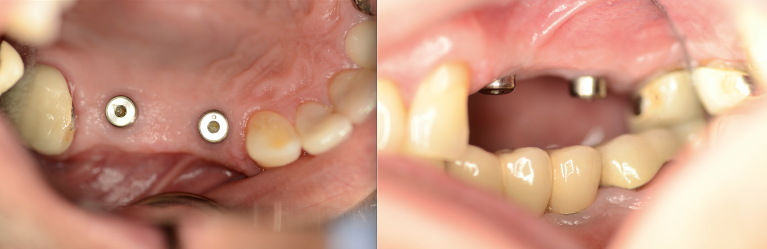 Implant-Bridge-Crown-Before-Image