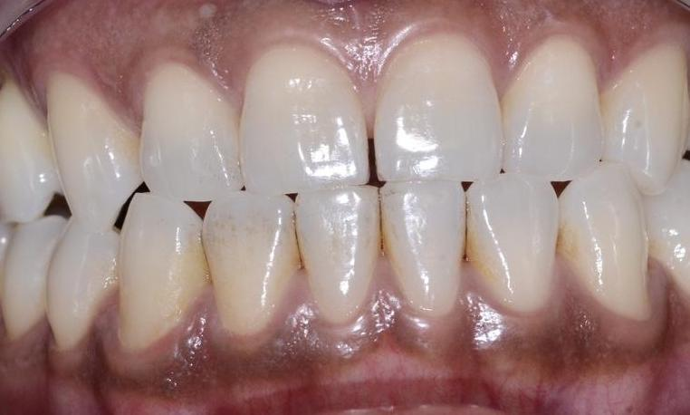 In-Office-Teeth-Whitening-Before-Image