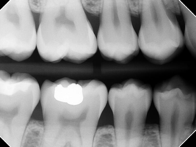 Digital X-Rays | Alpharetta Creek Restorative Dentistry